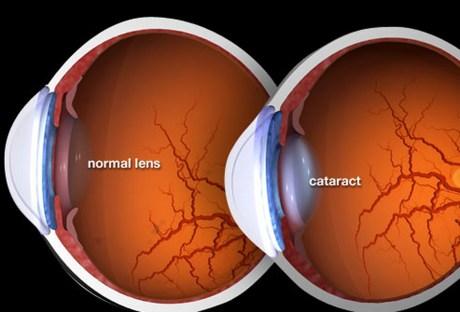 webmd_rm_photo_of_cataract_illustration